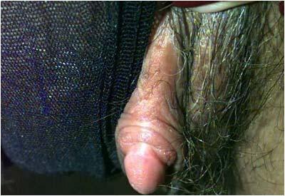 female sex anatomy clit